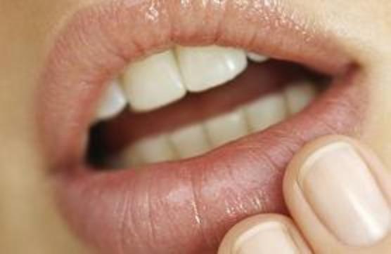 Почему возникает герпес на губах и как с ним бороться