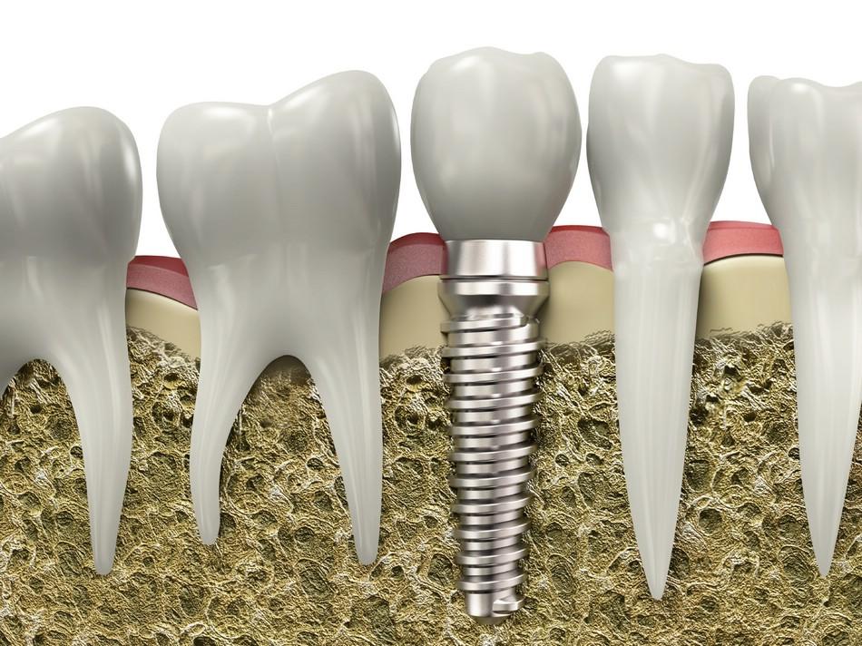 Стоматологи клиники Гарант успешно проводят протезирование зубов