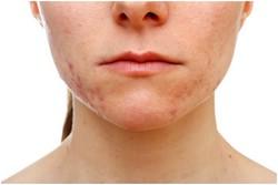 Универсальный крем от прыщей и других проблем кожи