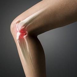 Артроз коленного сустава нуждается в незамедлительном лечении