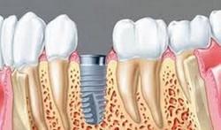 Как производится имплантация зубов