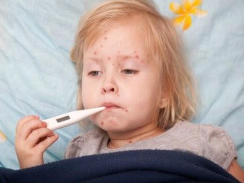 Корь: симптомы и лечение